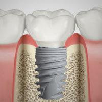 implantologia dentale bologna